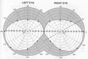 Het visuele veld van de ogen. Dit blikveld verruimen.